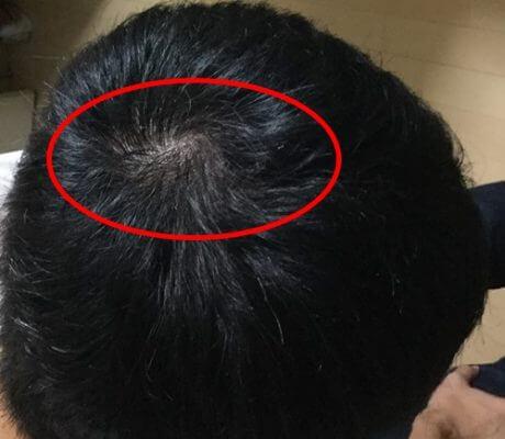 頭頂部のハゲ