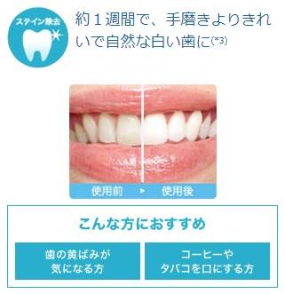 ソニッケアーで歯が白く